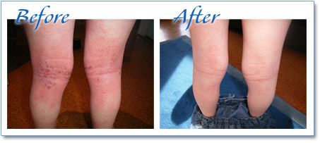 Eczema on the Legs - treat with Eczema Cream